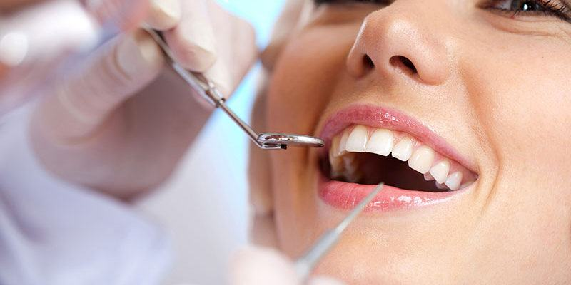 plombage-esthetique-blanchiment-dentaire_dentistes-Drummondville