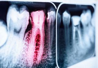 http://www.dentistedrummondville.com/wp-content/uploads/2015/12/traitements-canals_dentistes-Drummondville-320x222.jpg