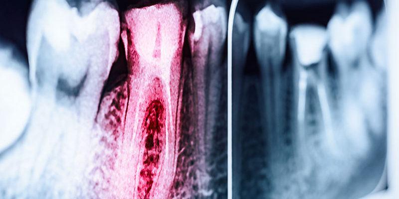 traitements-canals_dentistes-Drummondville