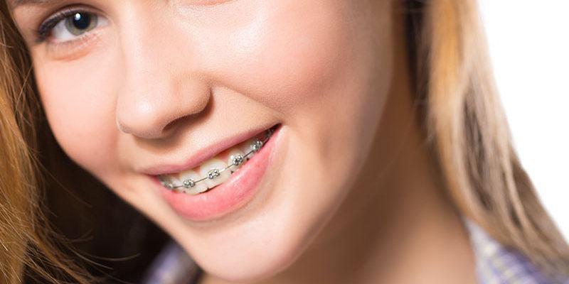 Broches_dentistes-Drummondville