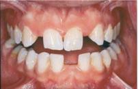 Clinique-Familiale-Dentaire-Drummondville_dentistes_6-4-Dents-manquantes-avant