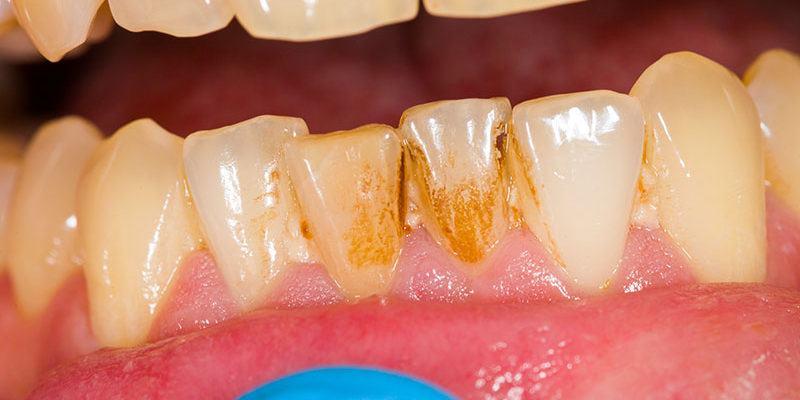tabagisme_dentistes-Drummondville