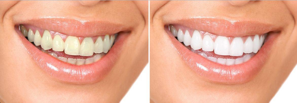 Blanchiment-dentaire-3.jpg